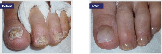 keryflex fake nail