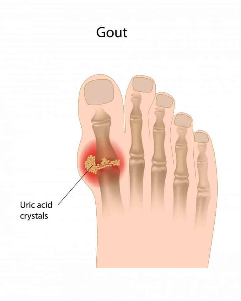 krystexxa gout