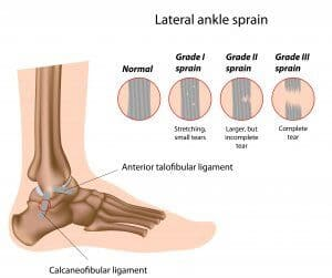 ankle sprain treatment center township