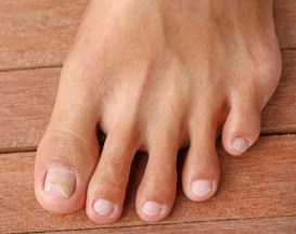 infected ingrown toenails