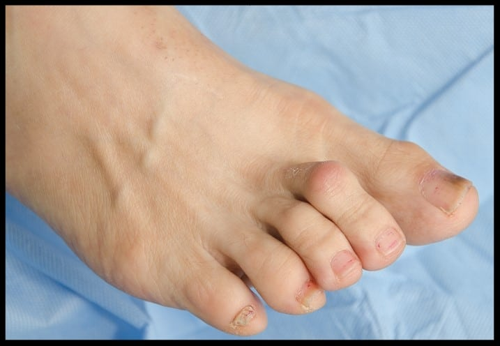 Hammertoe symptoms Cranberry Twp