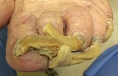 Fungus Toenail Care
