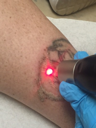 Removing a Leg Tattoo