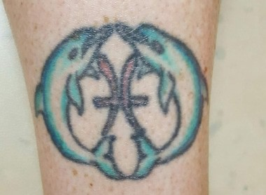 tattoo removal Pittsburgh