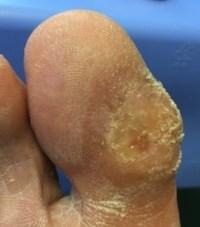 Diabetic Foot Doctor