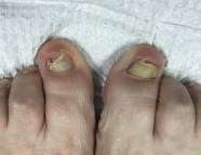 artificial Toenails before