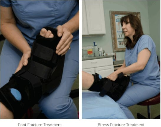 stress fracture treatment Pittsburgh