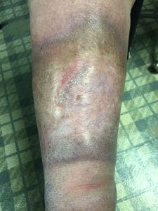 skin diseases of the foot