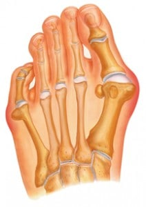 bunion treatment center twp pa