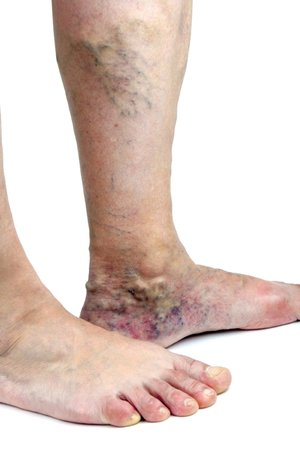 Varicose and spider vein treatments in pittsburgh