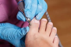 ingrown toenail treatments pittsburgh