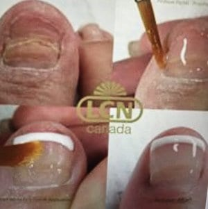 Cosmetic Toenails Pittsburgh
