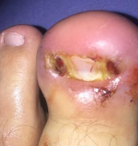 infected ingrown toenail treatment near me