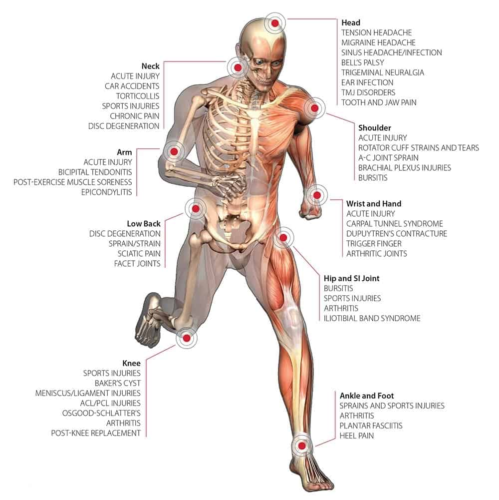 Image of body areas treated by K-Laser,Pittsburgh PA