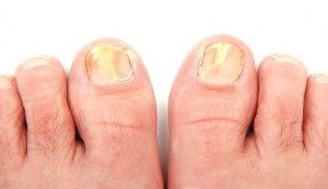 self care toenail fungus
