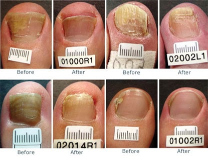 Laser treatments for toenail fungus removal