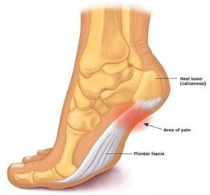 Plantar Fascia treatment Cranberry