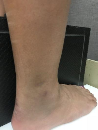 Foot X Ray Pittsburgh