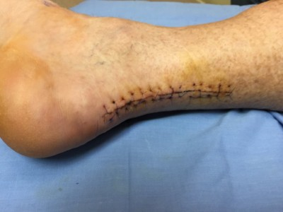 Achilles Tendon surgery