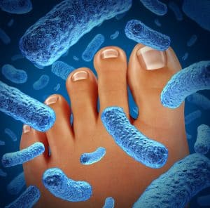 Treatment of Plantar Warts Pittsburgh