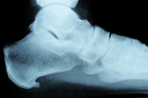 sports injury heel spur