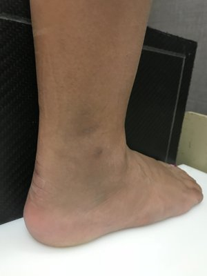 orthopedic dr for ankle sprain