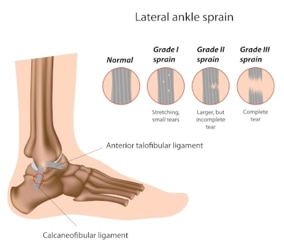 X-rays of the Sprained Ankle