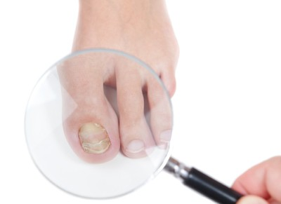 toenail fungus treatment Pittsburgh
