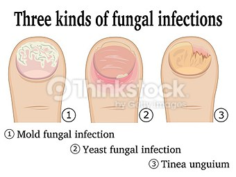 toenail fungus treatments in Pittsburgh