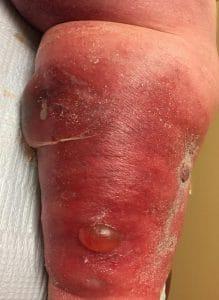 leg blisters