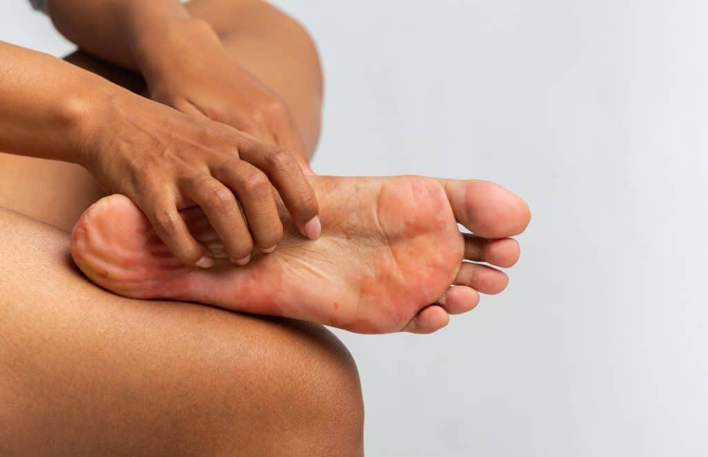hives urticaria foot
