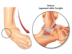 Hyaluronic Acid ankle