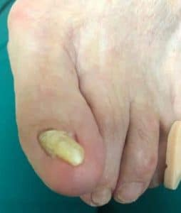 Fungus Toenail infection