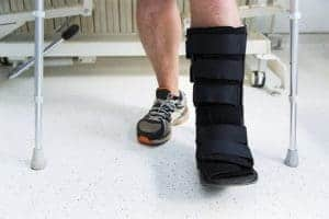 broken ankle treatment