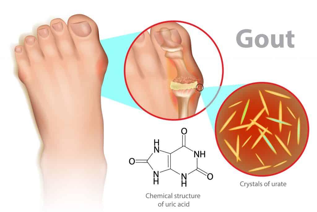 gout pain foot