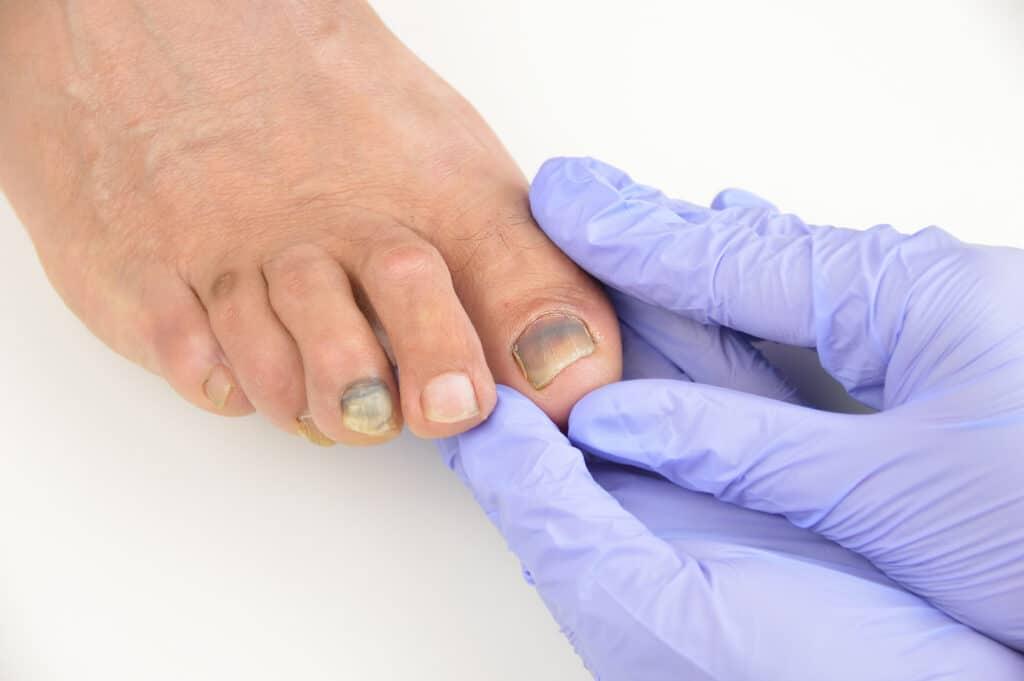is toenail fungus painful
