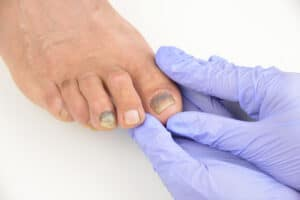 is toenail fungus painful